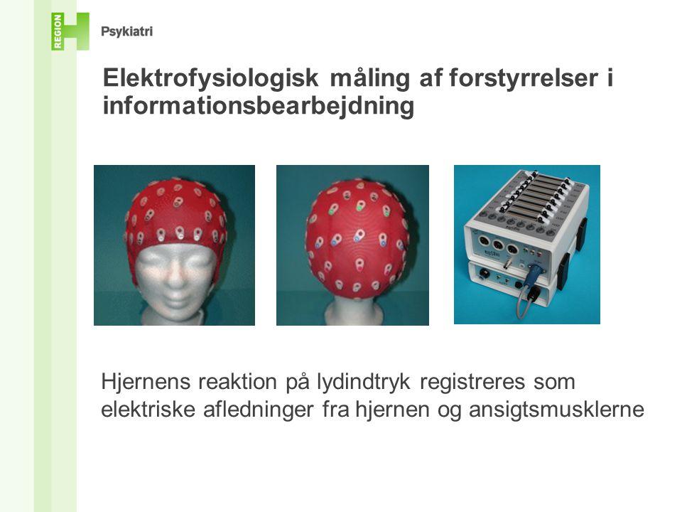 Elektrofysiologisk måling af forstyrrelser i informationsbearbejdning