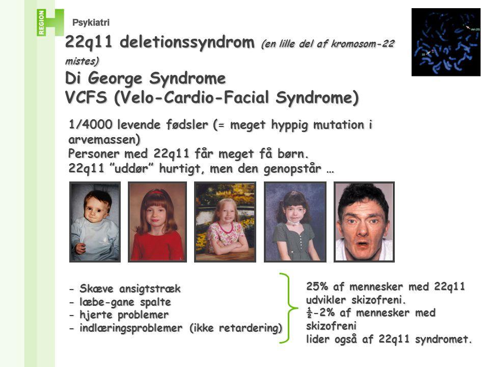22q11 deletionssyndrom (en lille del af kromosom-22 mistes)