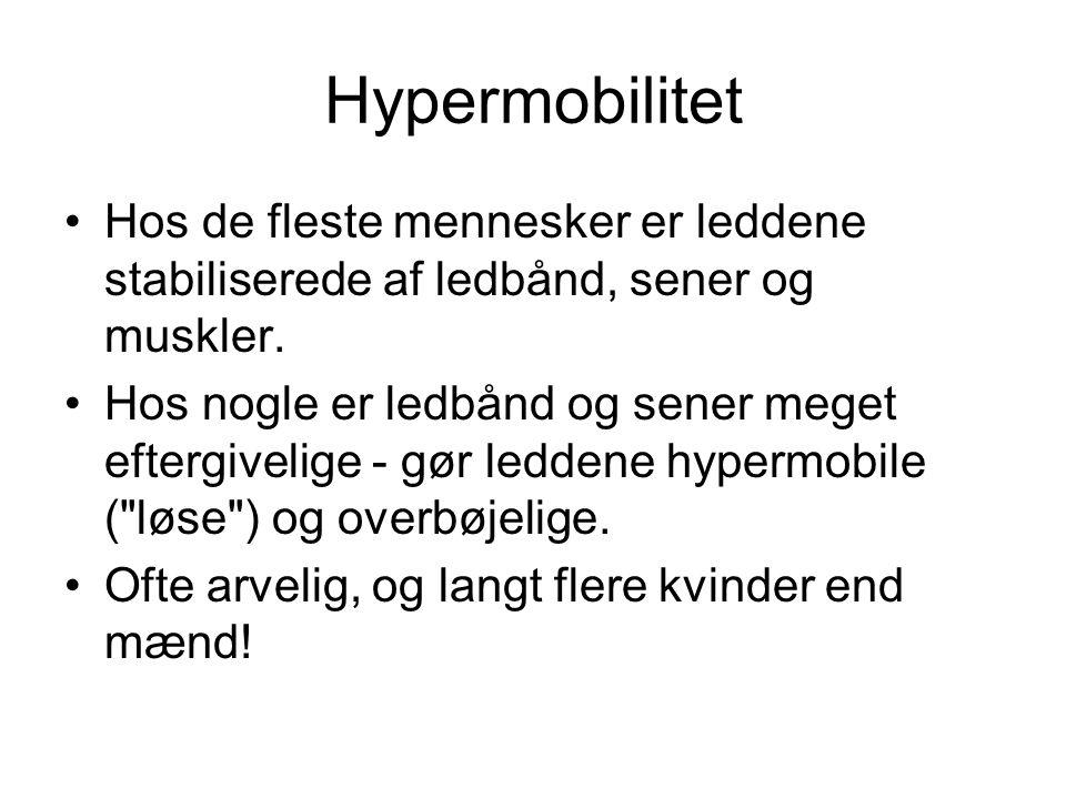 Hypermobilitet Hos de fleste mennesker er leddene stabiliserede af ledbånd, sener og muskler.