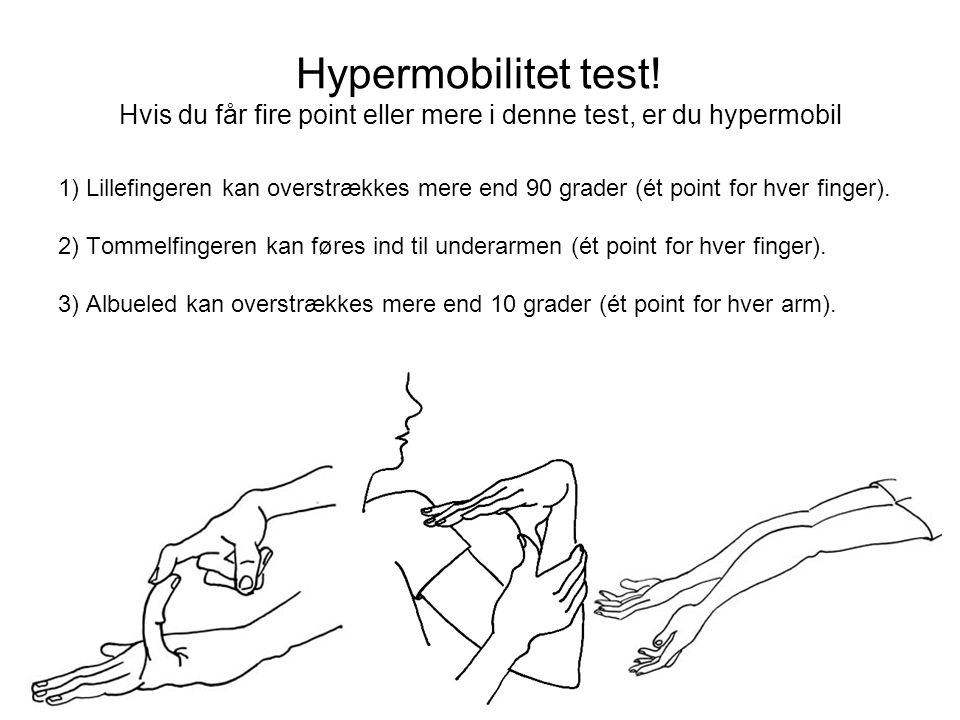 Hypermobilitet test! Hvis du får fire point eller mere i denne test, er du hypermobil
