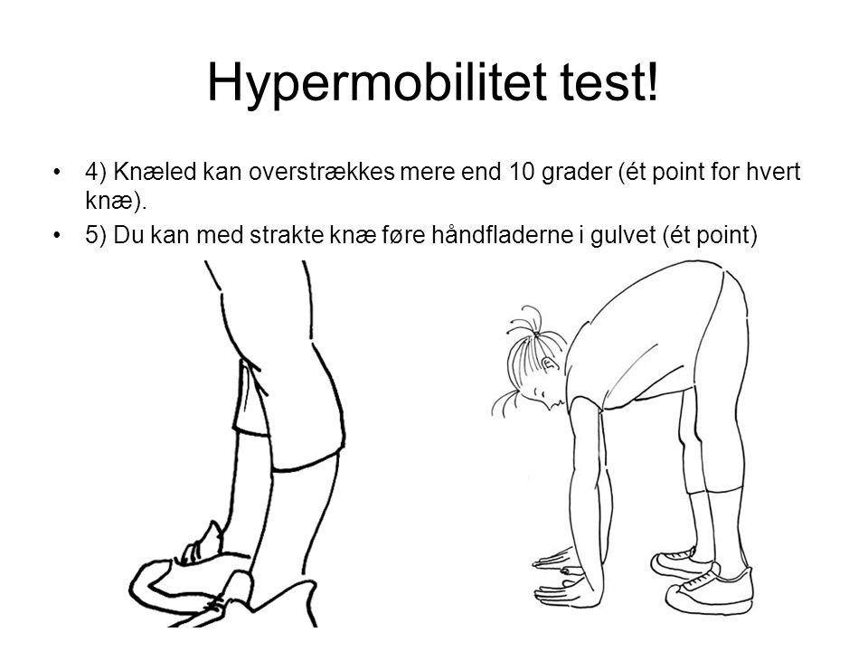 Hypermobilitet test! 4) Knæled kan overstrækkes mere end 10 grader (ét point for hvert knæ).