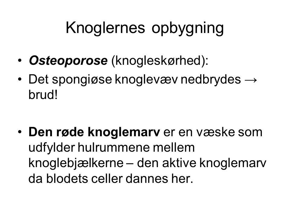 Knoglernes opbygning Osteoporose (knogleskørhed):