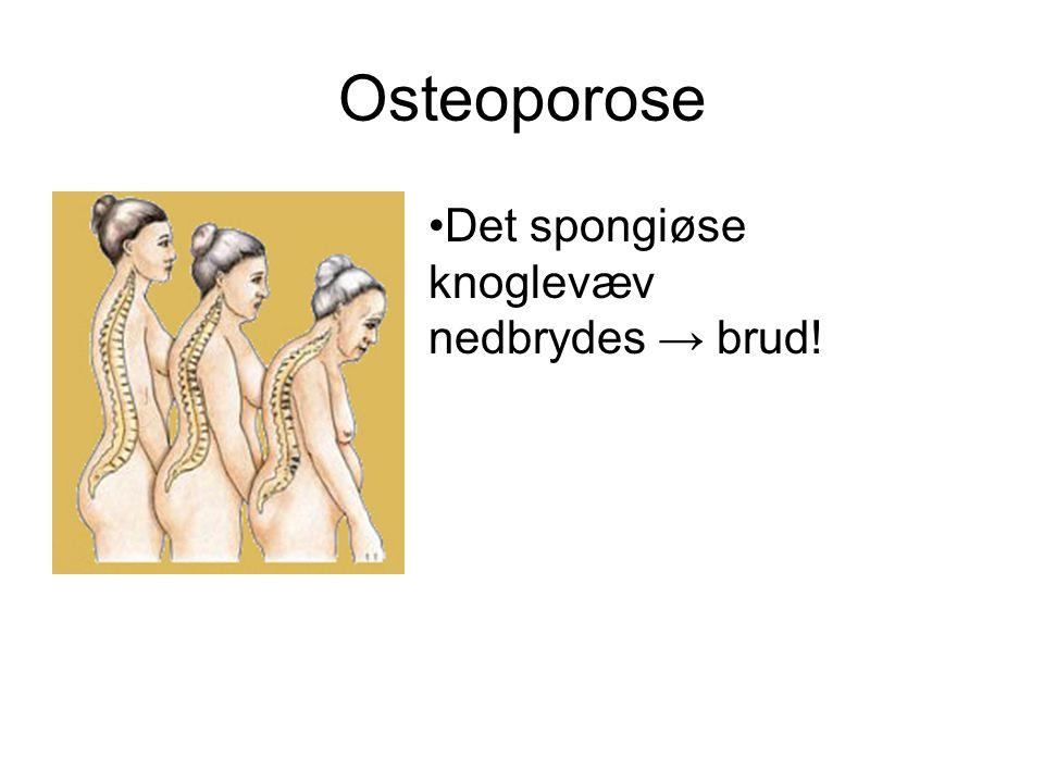 Osteoporose Det spongiøse knoglevæv nedbrydes → brud!