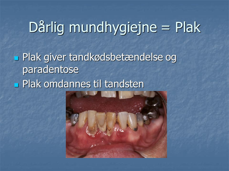 Dårlig mundhygiejne = Plak