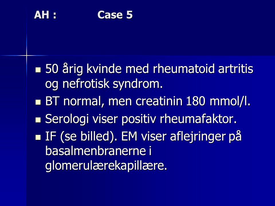 50 årig kvinde med rheumatoid artritis og nefrotisk syndrom.