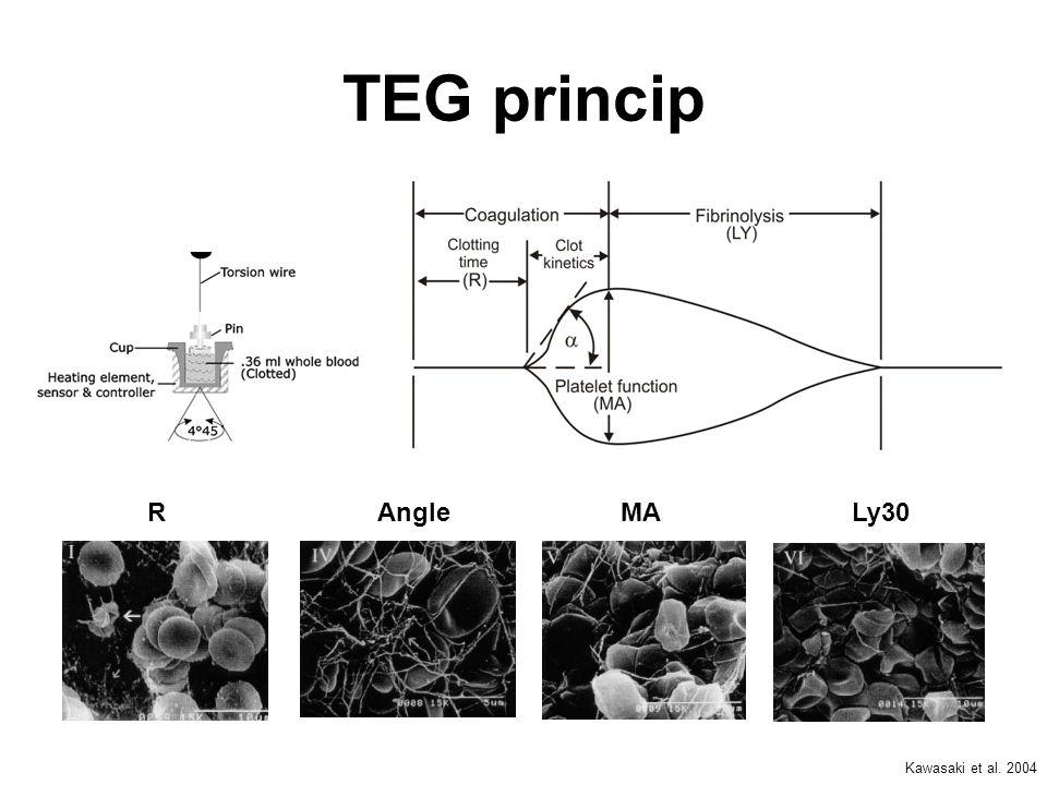 TEG princip R Angle MA Ly30 Kawasaki et al. 2004