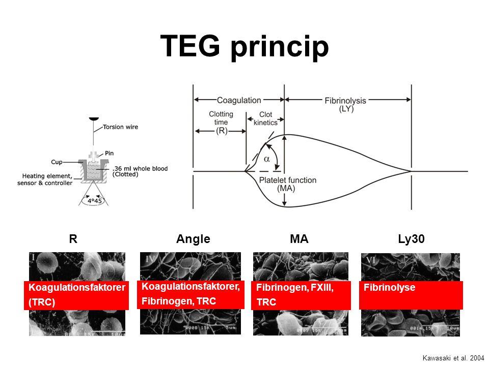 TEG princip R Angle MA Ly30 Koagulationsfaktorer (TRC)