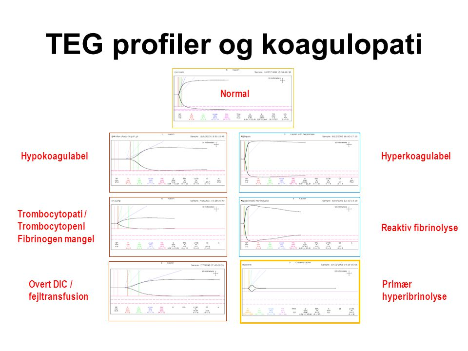 TEG profiler og koagulopati