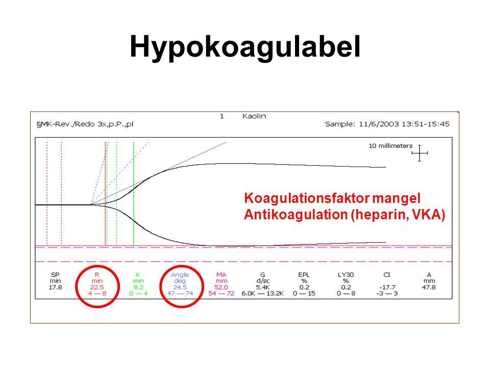 Hypokoagulabel Koagulationsfaktor mangel