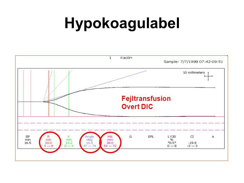 Hypokoagulabel Fejltransfusion Overt DIC