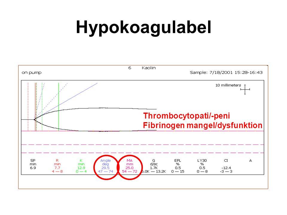 Hypokoagulabel Thrombocytopati/-peni Fibrinogen mangel/dysfunktion