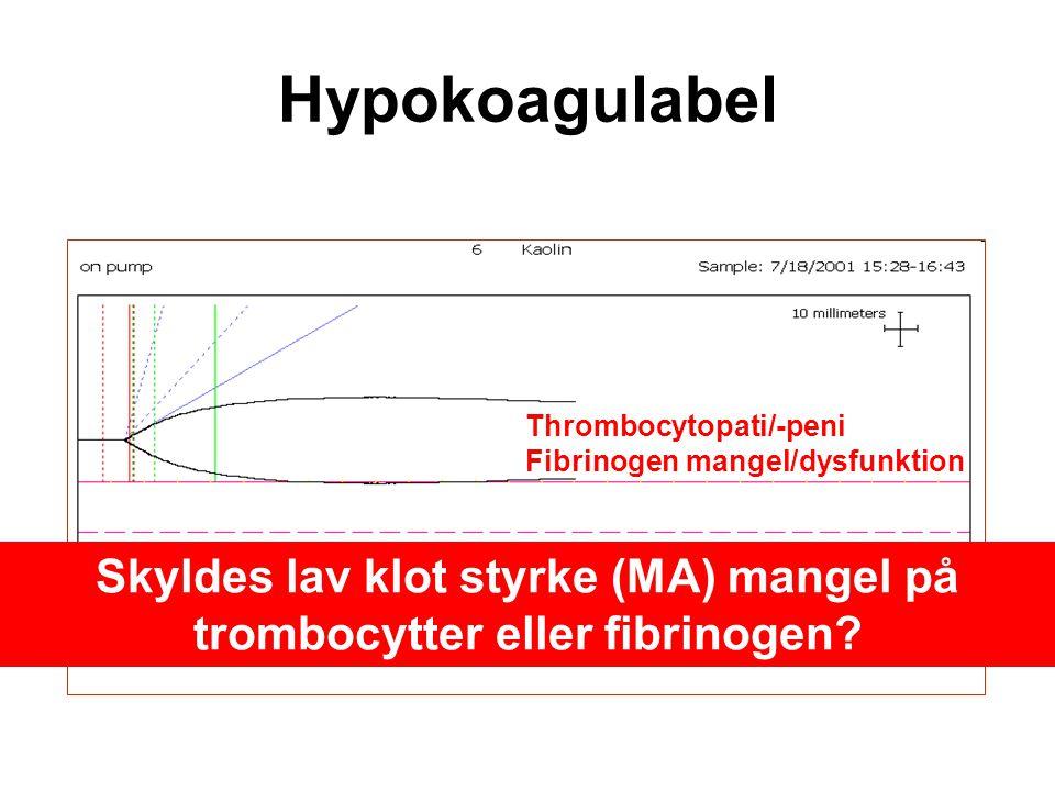 Skyldes lav klot styrke (MA) mangel på trombocytter eller fibrinogen