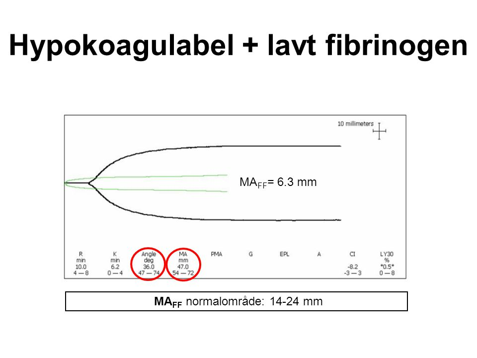 Hypokoagulabel + lavt fibrinogen
