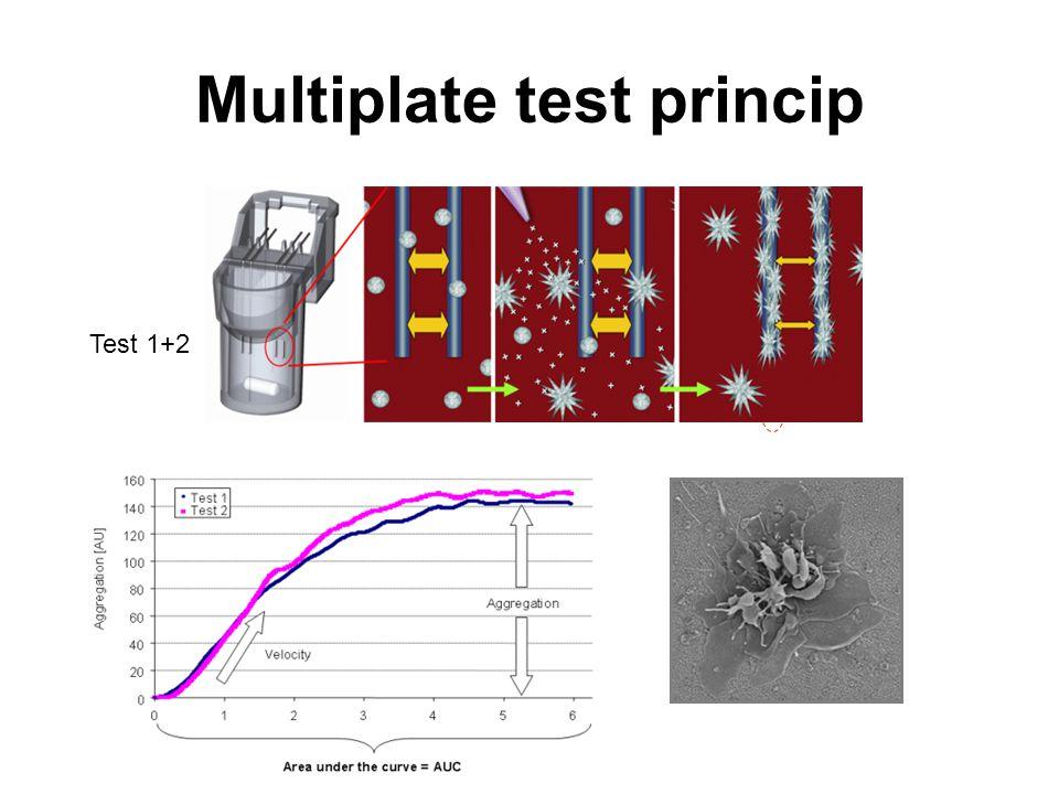 Multiplate test princip
