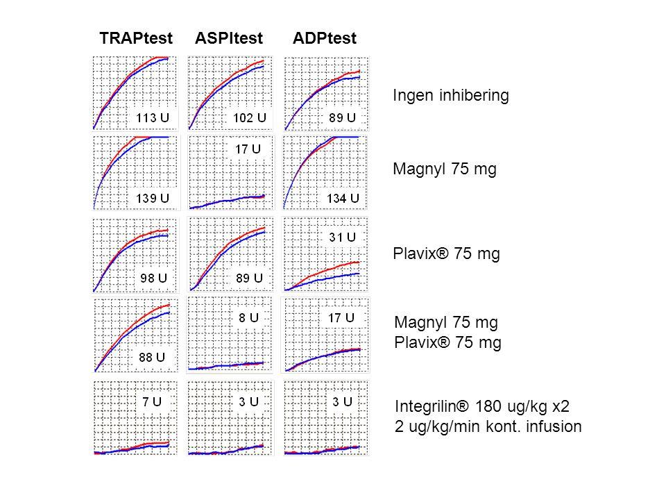 TRAPtest ASPItest. ADPtest. Ingen inhibering. Magnyl 75 mg. Plavix® 75 mg. Magnyl 75 mg. Plavix® 75 mg.