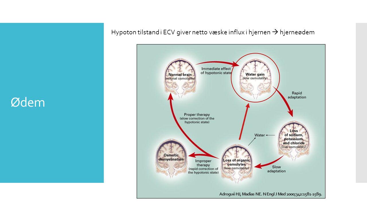 Hypoton tilstand i ECV giver netto væske influx i hjernen  hjerneødem