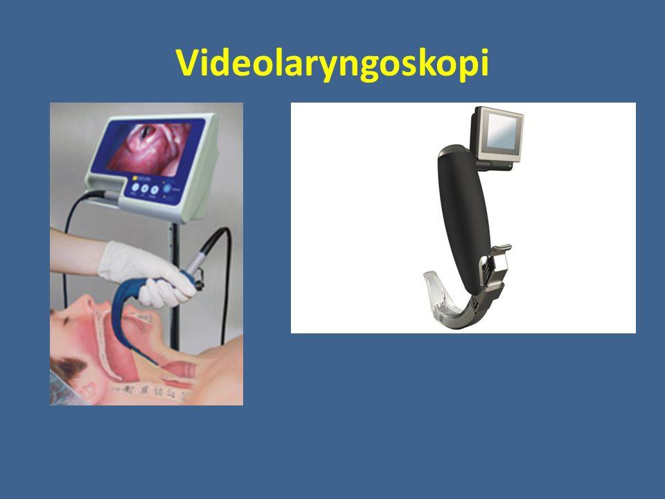 Videolaryngoskopi