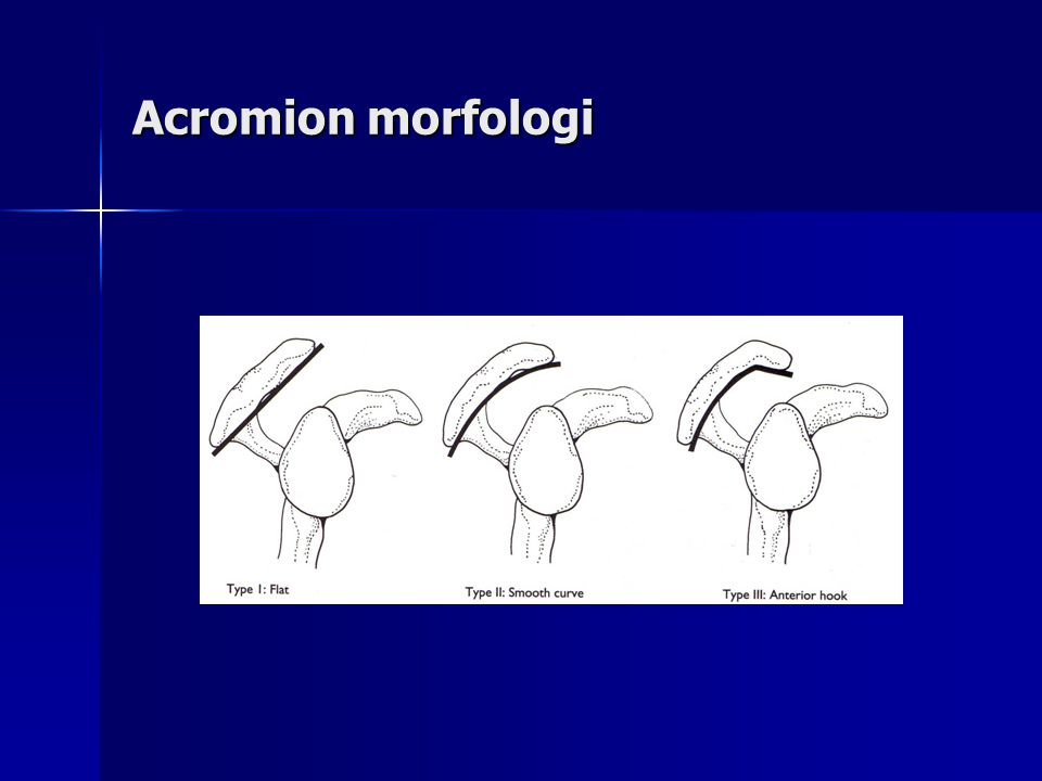 Acromion morfologi