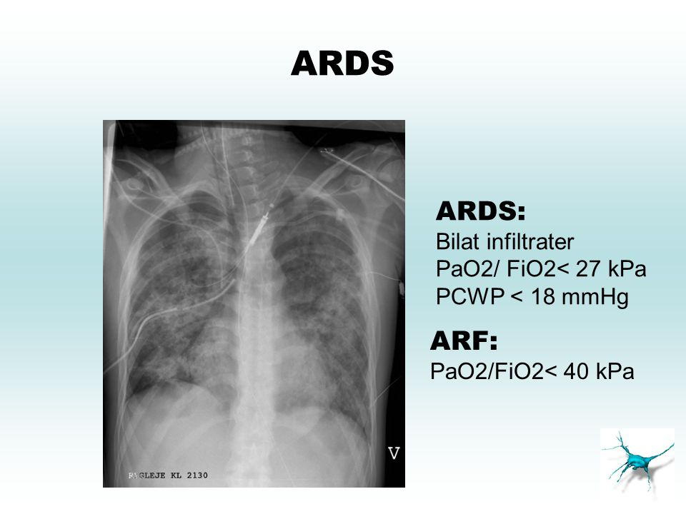 ARDS ARDS: ARF: Bilat infiltrater PaO2/ FiO2< 27 kPa