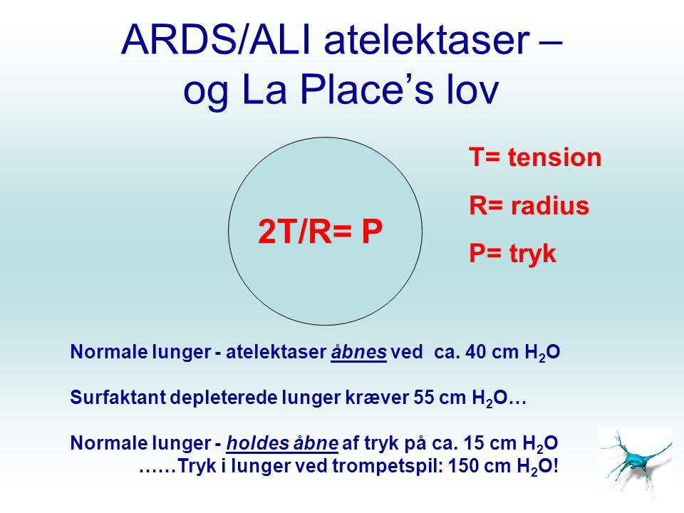 ARDS/ALI atelektaser – og La Place's lov