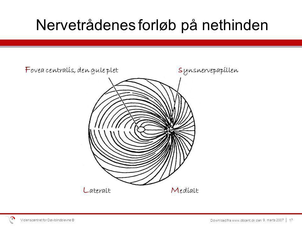 Nervetrådenes forløb på nethinden