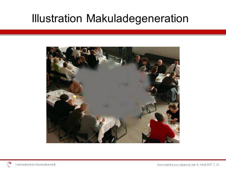 Illustration Makuladegeneration