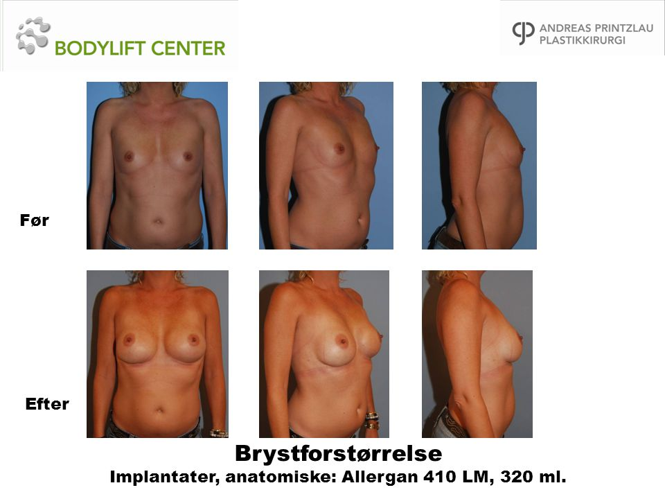 Brystforstørrelse Implantater, anatomiske: Allergan 410 LM, 320 ml.