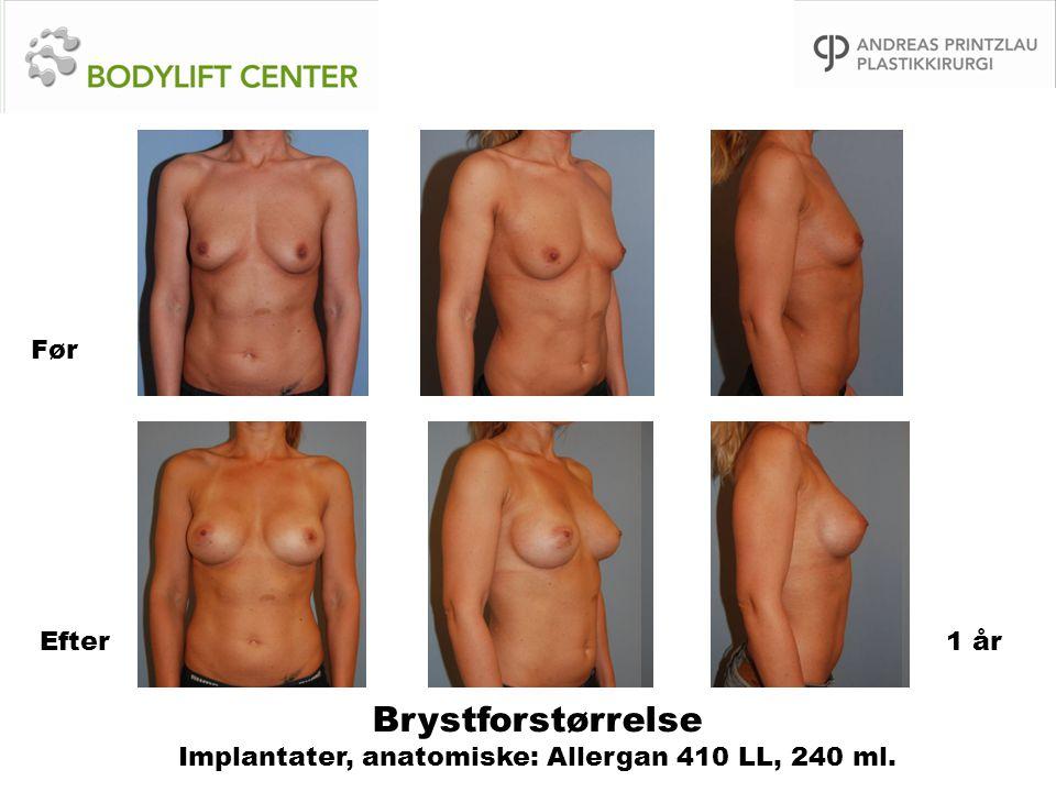 Brystforstørrelse Implantater, anatomiske: Allergan 410 LL, 240 ml.