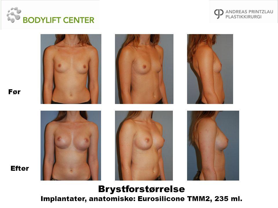 Brystforstørrelse Implantater, anatomiske: Eurosilicone TMM2, 235 ml.