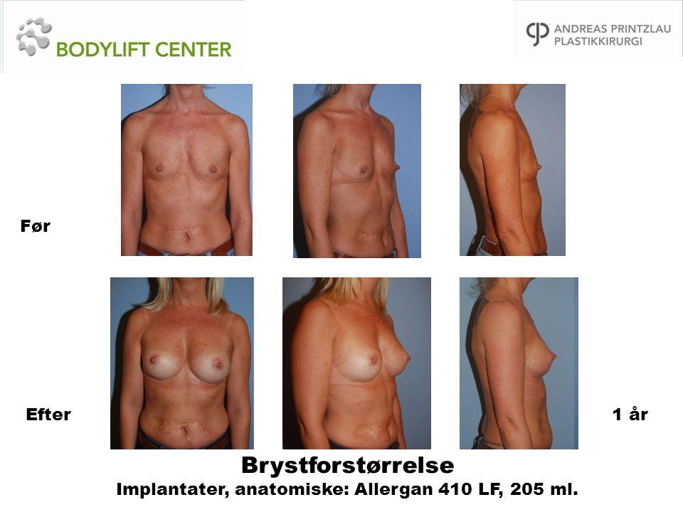 Brystforstørrelse Implantater, anatomiske: Allergan 410 LF, 205 ml.