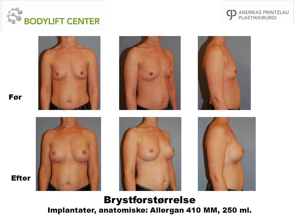 Brystforstørrelse Implantater, anatomiske: Allergan 410 MM, 250 ml.
