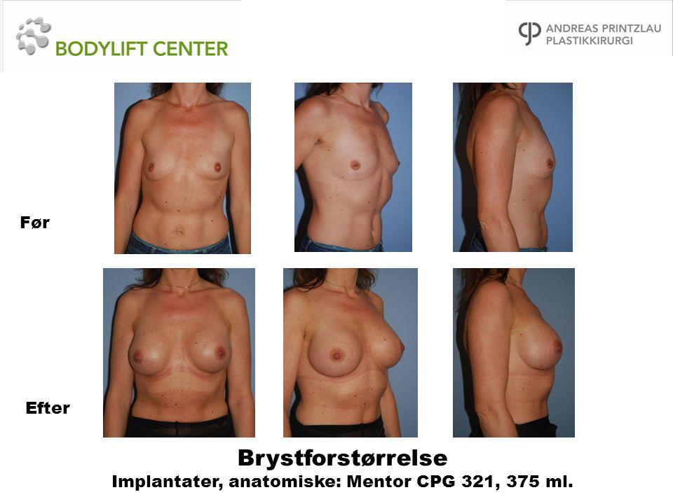Brystforstørrelse Implantater, anatomiske: Mentor CPG 321, 375 ml.