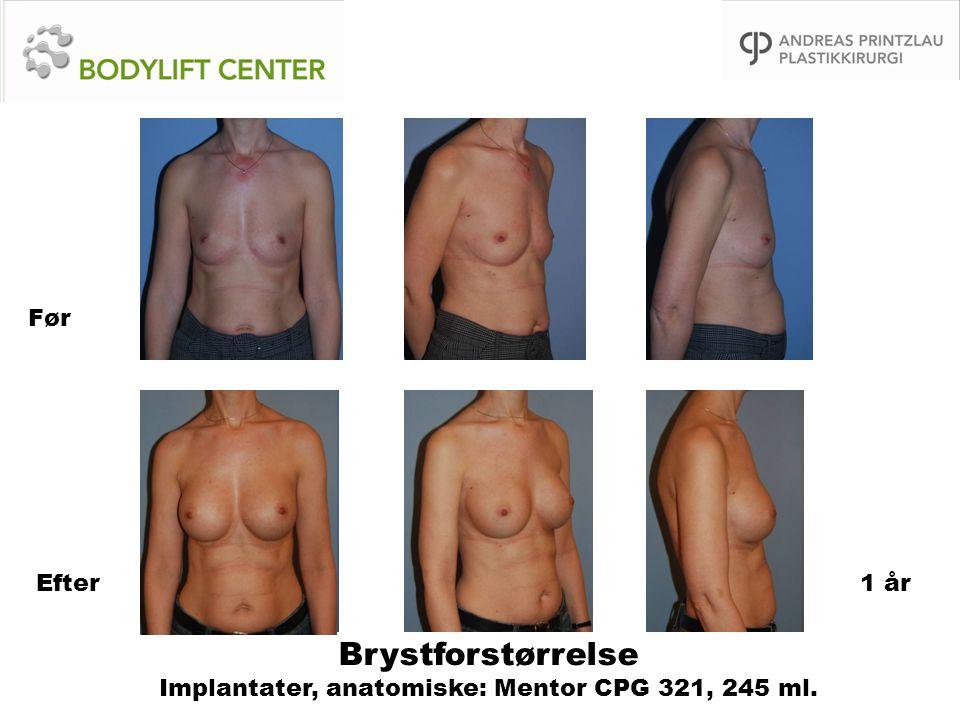 Brystforstørrelse Implantater, anatomiske: Mentor CPG 321, 245 ml.