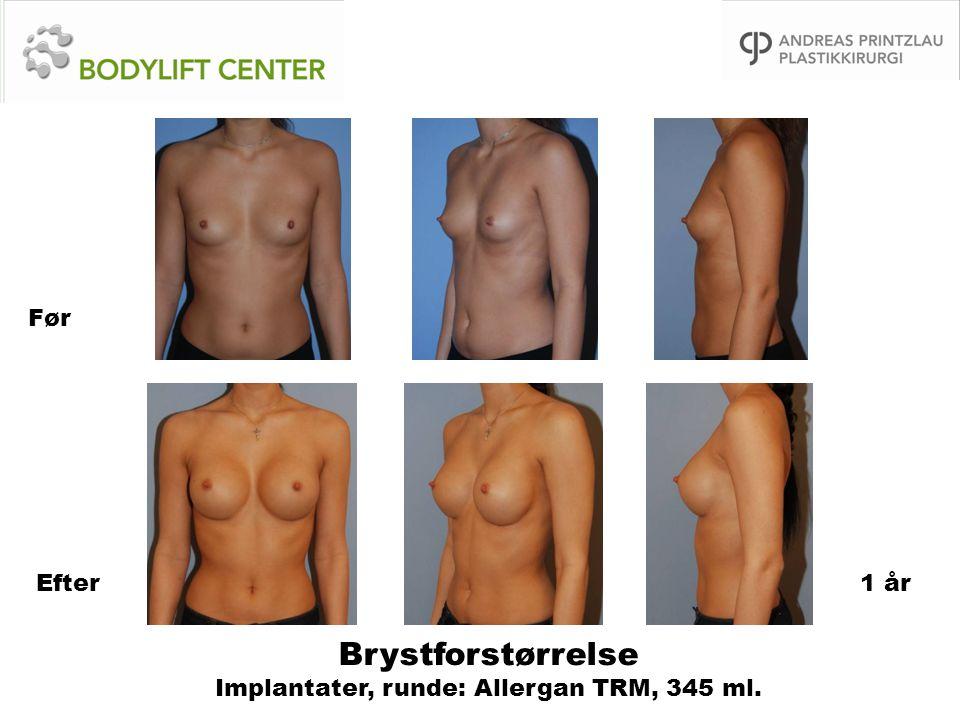 Brystforstørrelse Implantater, runde: Allergan TRM, 345 ml.