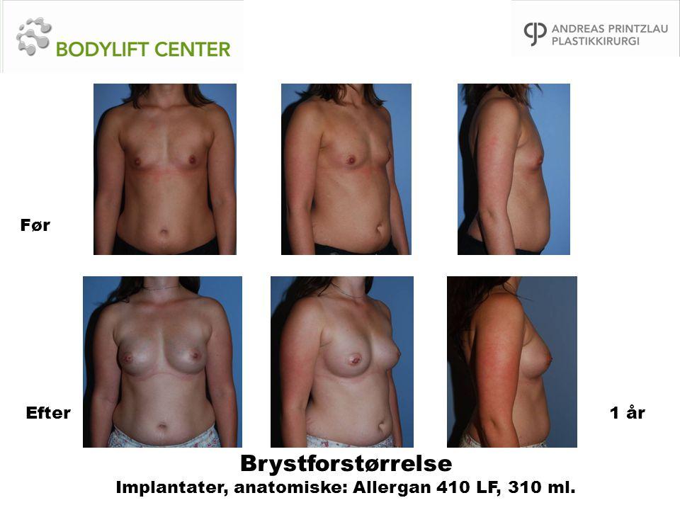 Brystforstørrelse Implantater, anatomiske: Allergan 410 LF, 310 ml.