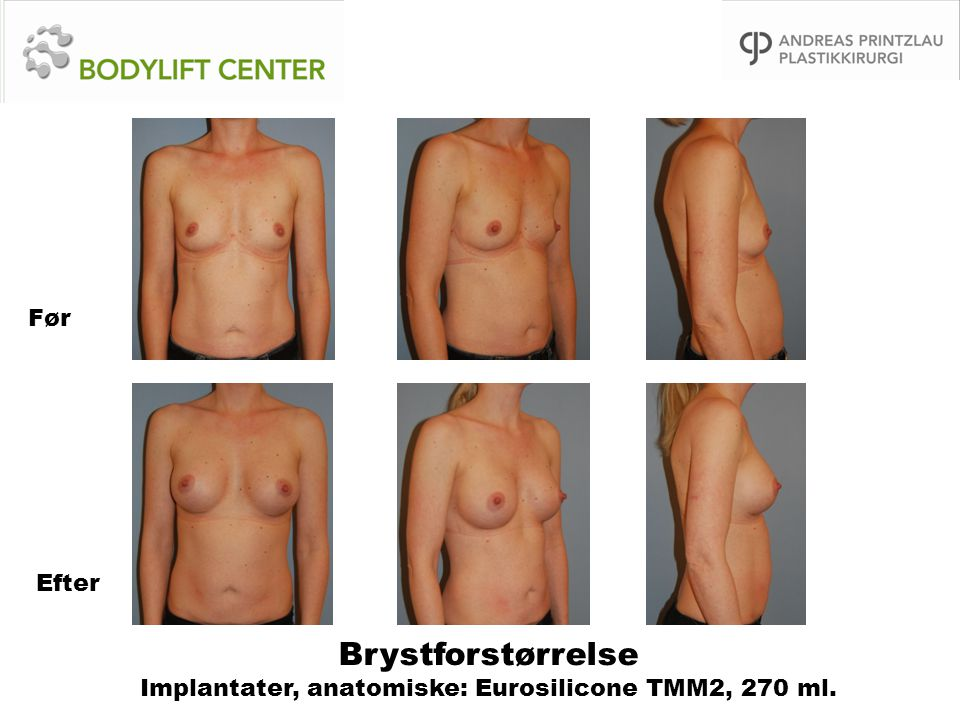 Brystforstørrelse Implantater, anatomiske: Eurosilicone TMM2, 270 ml.