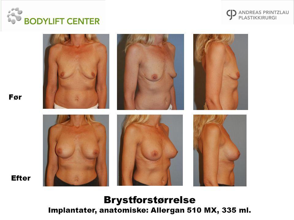 Brystforstørrelse Implantater, anatomiske: Allergan 510 MX, 335 ml.