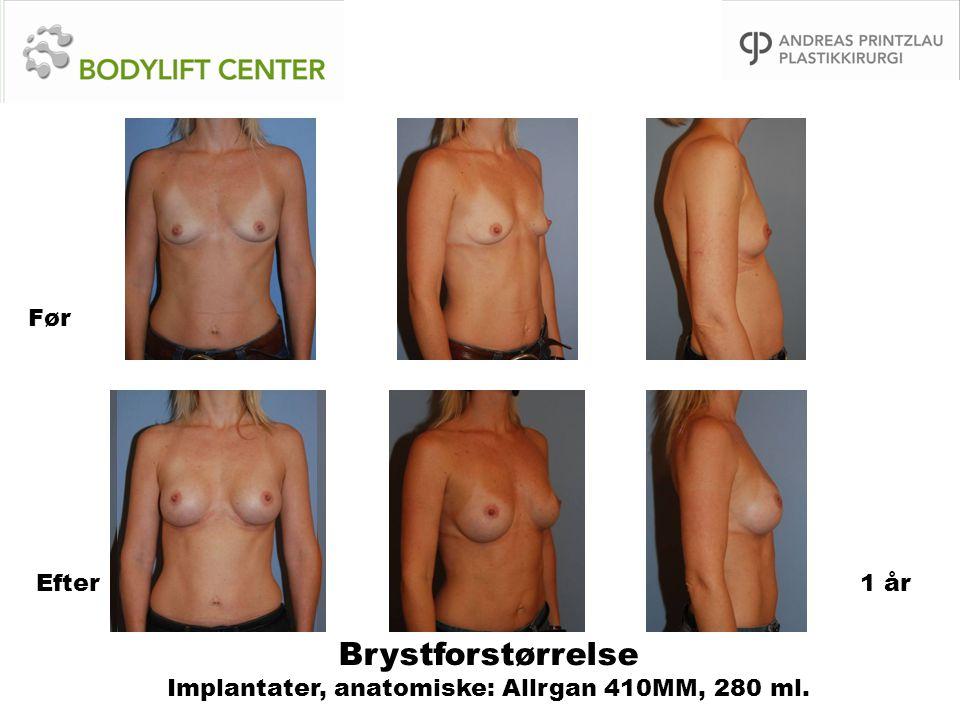Brystforstørrelse Implantater, anatomiske: Allrgan 410MM, 280 ml.