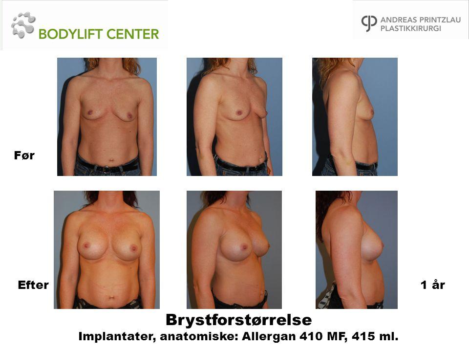 Brystforstørrelse Implantater, anatomiske: Allergan 410 MF, 415 ml.