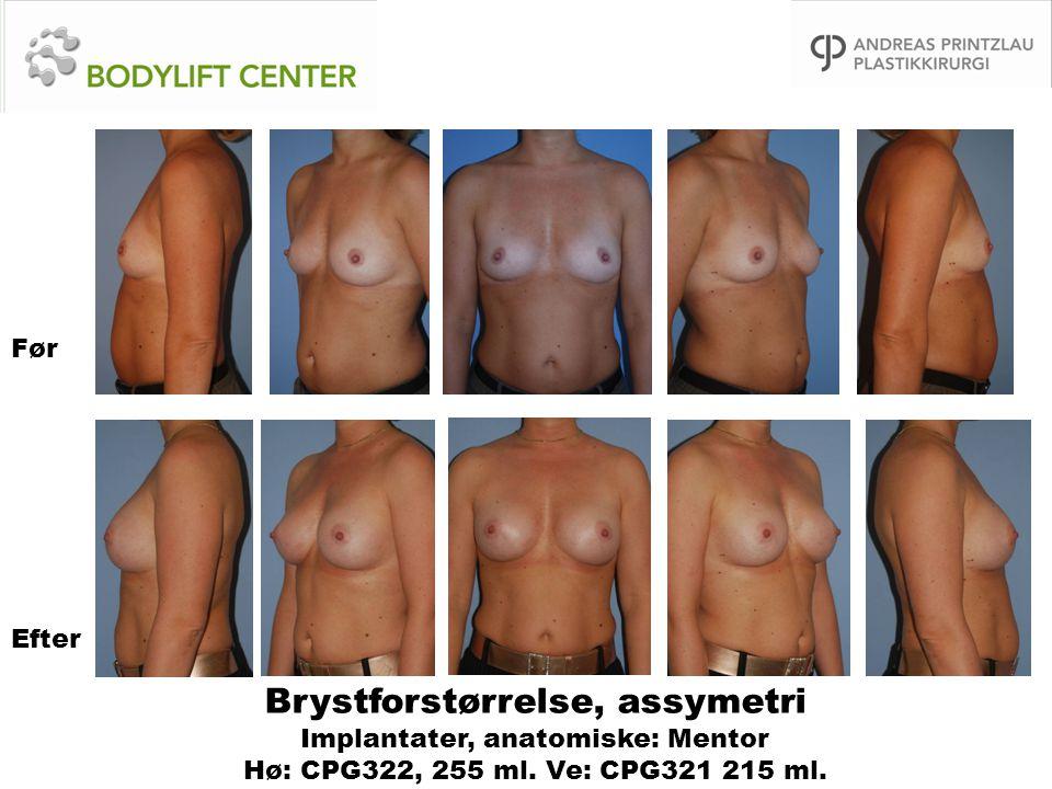 Før Efter. Brystforstørrelse, assymetri Implantater, anatomiske: Mentor Hø: CPG322, 255 ml.
