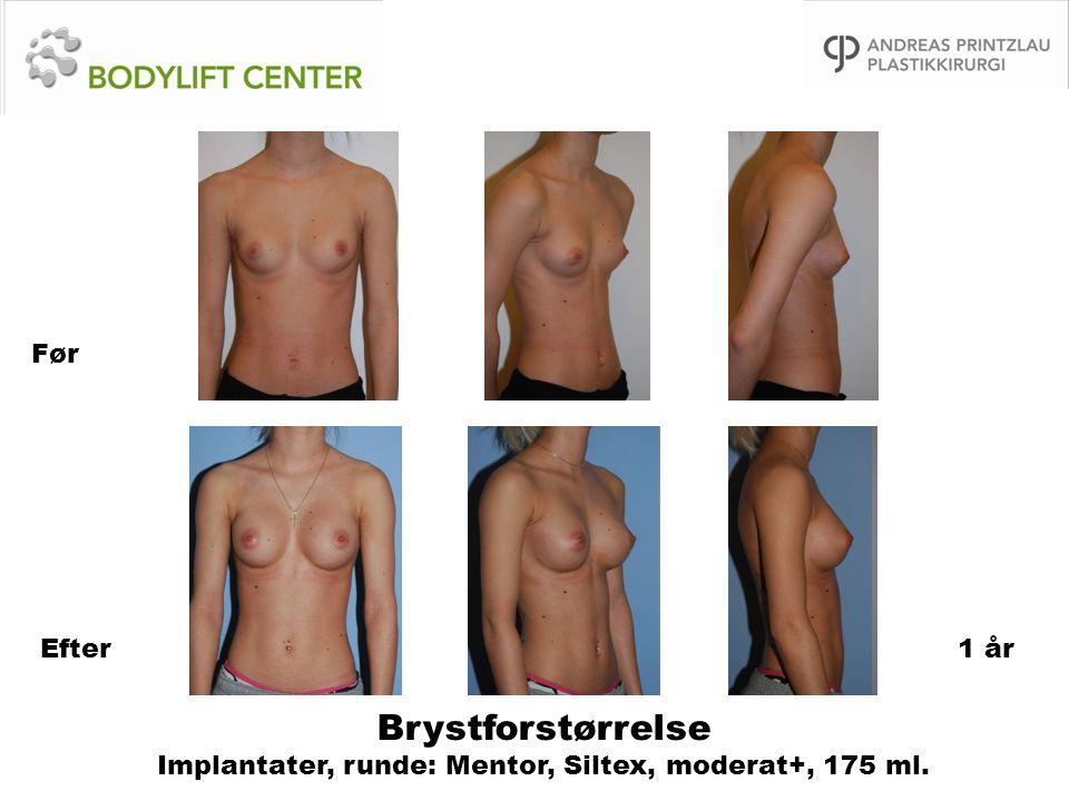 Før Efter 1 år Brystforstørrelse Implantater, runde: Mentor, Siltex, moderat+, 175 ml.
