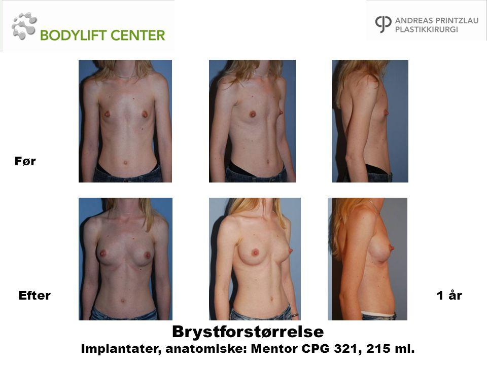 Brystforstørrelse Implantater, anatomiske: Mentor CPG 321, 215 ml.