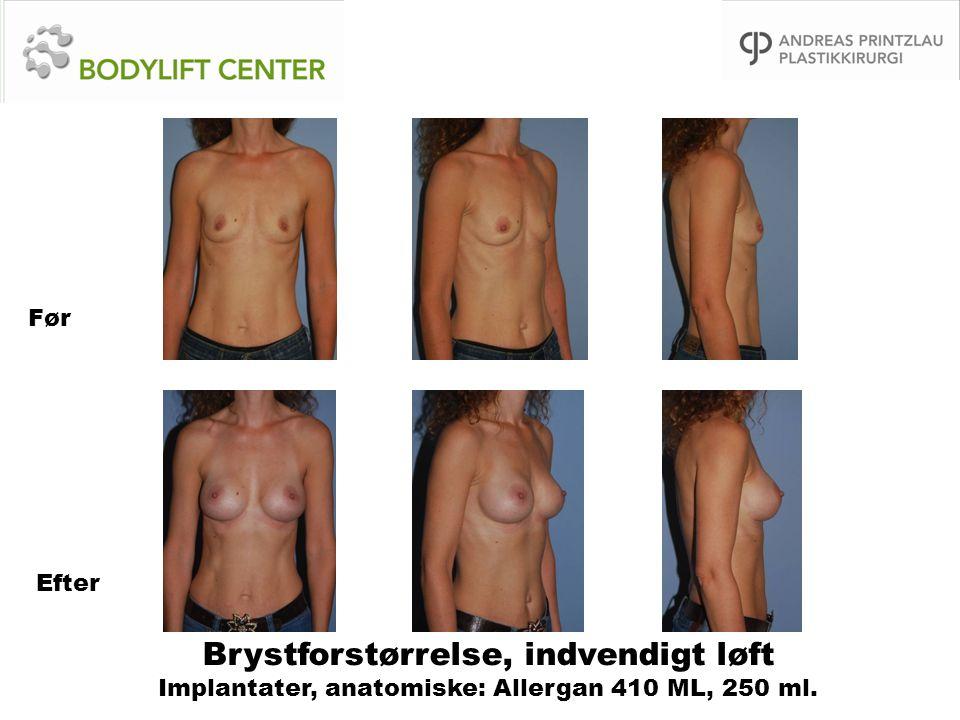 Før Efter Brystforstørrelse, indvendigt løft Implantater, anatomiske: Allergan 410 ML, 250 ml.