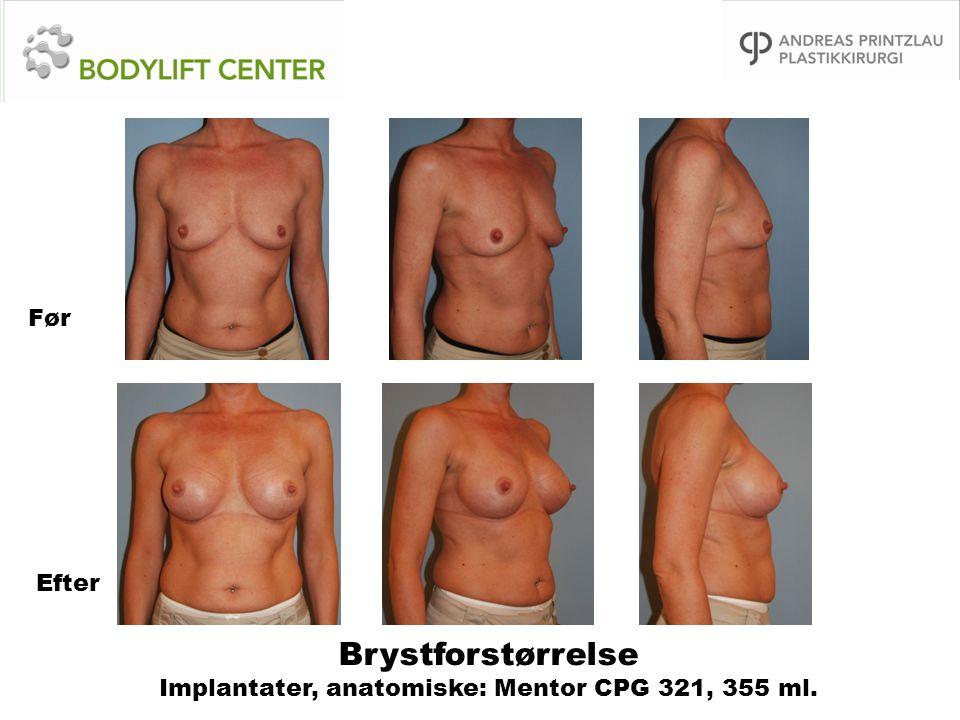 Brystforstørrelse Implantater, anatomiske: Mentor CPG 321, 355 ml.