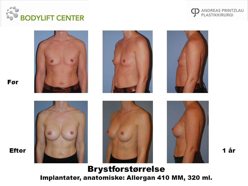Brystforstørrelse Implantater, anatomiske: Allergan 410 MM, 320 ml.