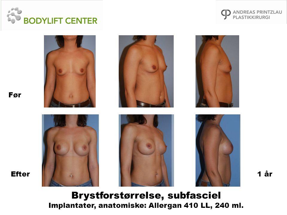 Før Efter 1 år Brystforstørrelse, subfasciel Implantater, anatomiske: Allergan 410 LL, 240 ml.