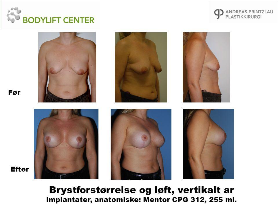 Før Efter Brystforstørrelse og løft, vertikalt ar Implantater, anatomiske: Mentor CPG 312, 255 ml.