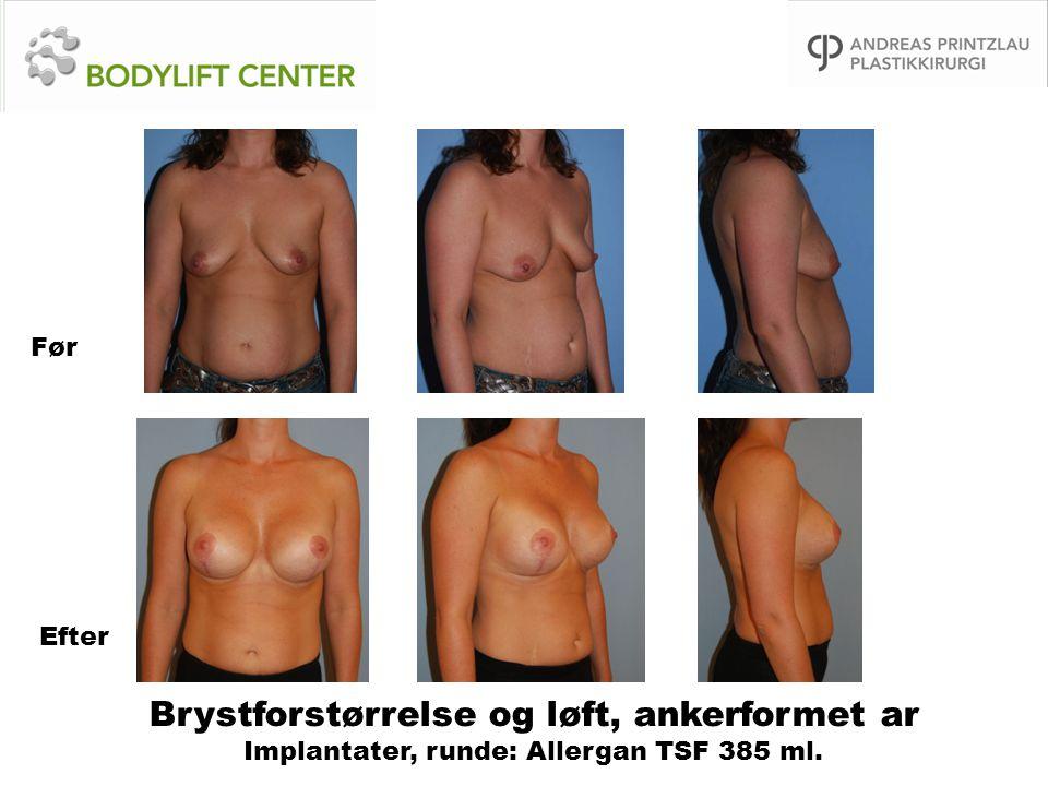 Før Efter Brystforstørrelse og løft, ankerformet ar Implantater, runde: Allergan TSF 385 ml.
