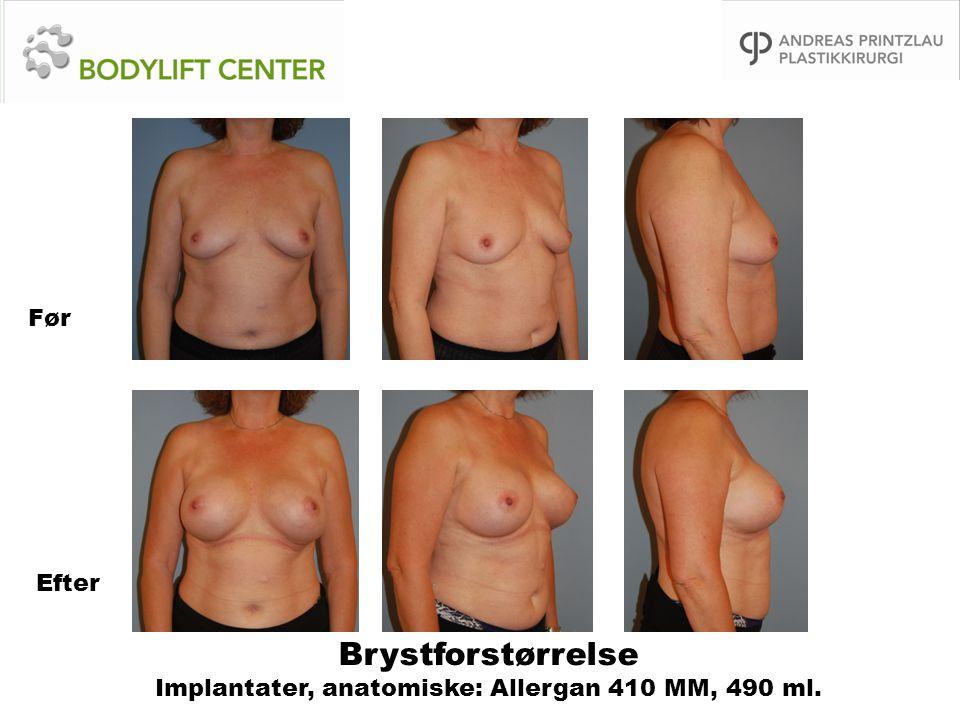 Brystforstørrelse Implantater, anatomiske: Allergan 410 MM, 490 ml.