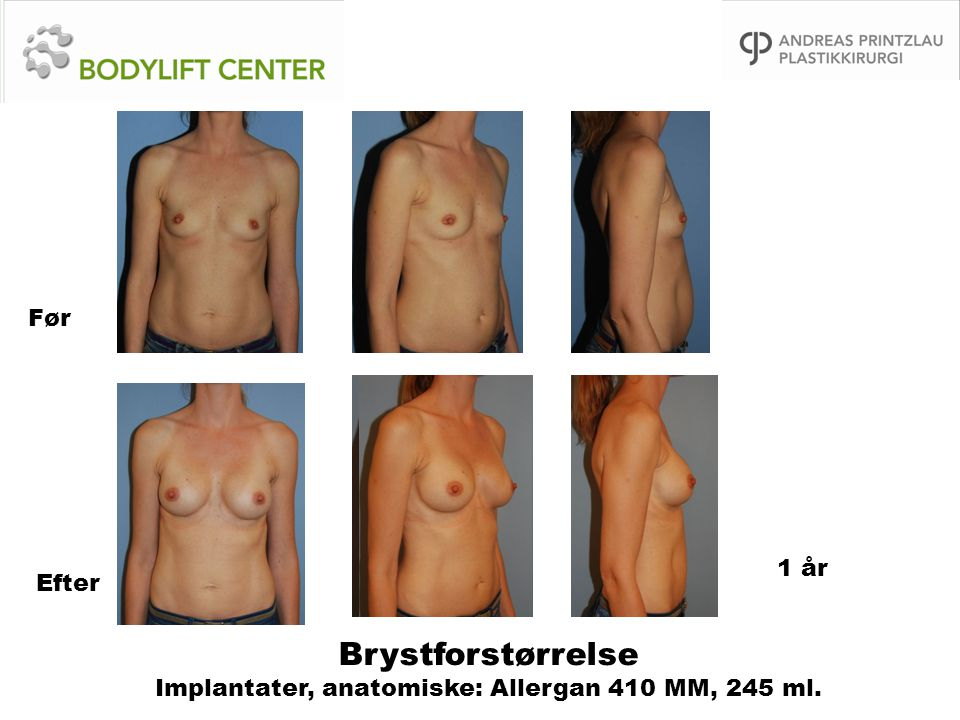 Brystforstørrelse Implantater, anatomiske: Allergan 410 MM, 245 ml.